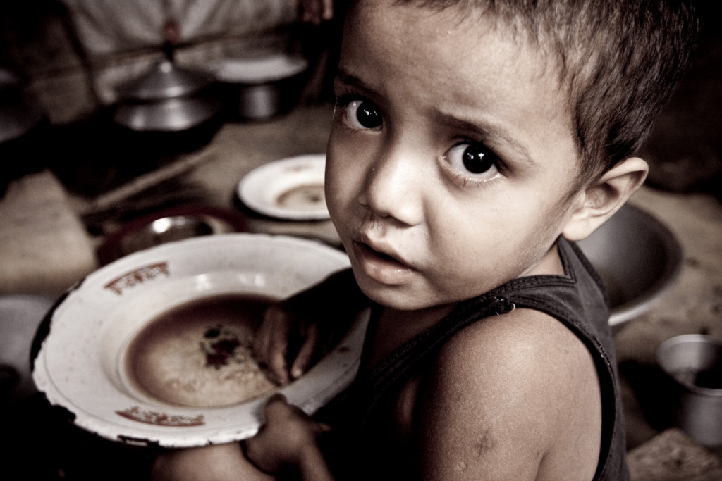 Setelah Gizi Buruk, Ratusan Anak TTU Alami Gizi Kurang