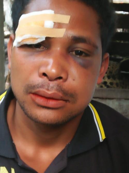 Jaksa Endus Keterlibatan Oknum Anggota TNI dalam Kasus Nunkolo
