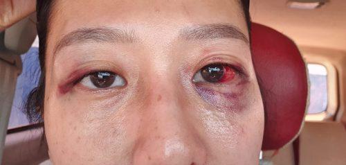 Dianiaya Dua Remaja Putri, Ibu Ini Alami Sakit di Mata dan Harus Minum Obat Selama Seminggu