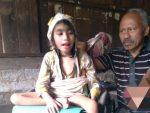Sedih, Bocah Difabel Ini Sembilan Tahun Terbaring Lesu di Ranjang